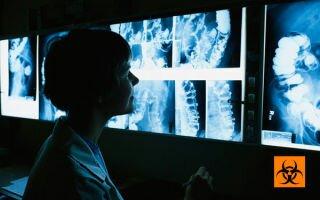 Сколько раз в год можно делать рентген легких, носа и зубов