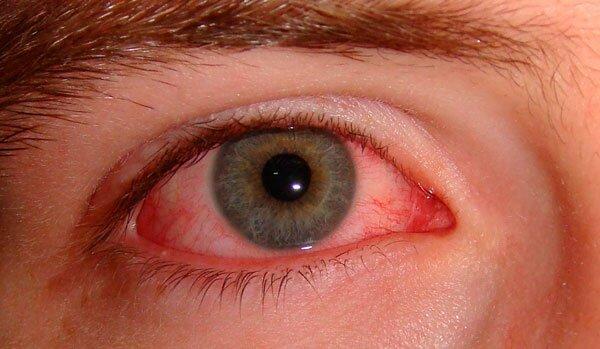 Симптомы отравления формалином