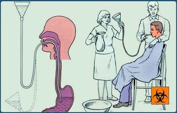 Как промывают желудок в больнице - зондовый и беззондовый метод